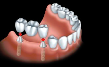 A fixed bridge implant supported bridge is anchored to dental implants to replace all teeth.